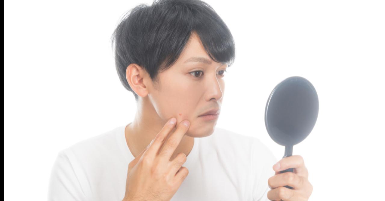 【メンズ美容初心者用】シミ、ニキビ跡を自分で消す!