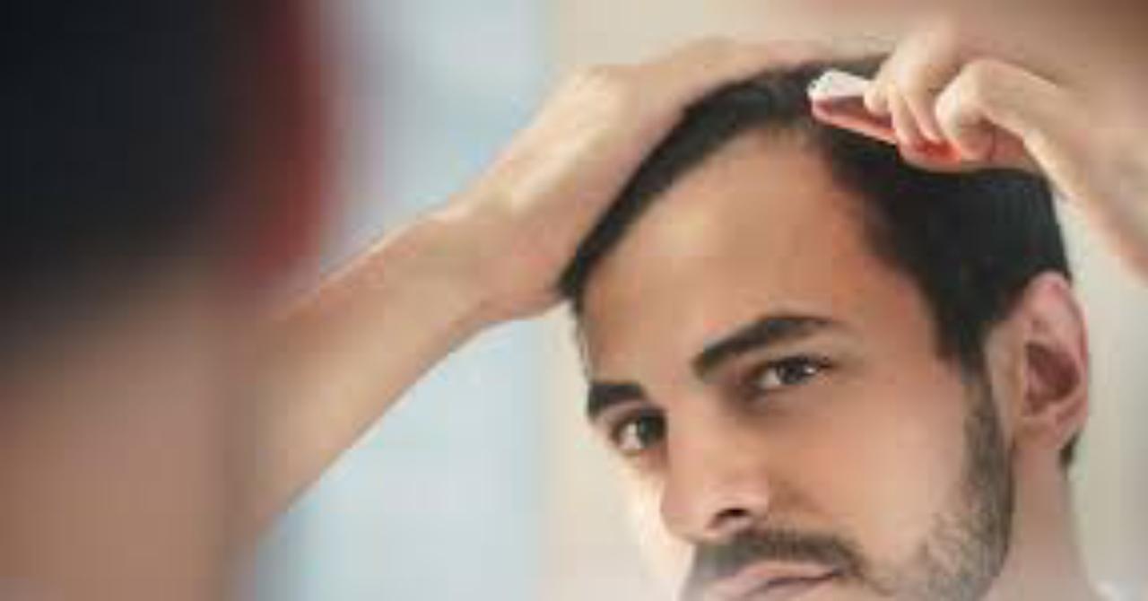 毎月3万円かかる医療機関発毛治療を毎月3,000円以下で行う方法